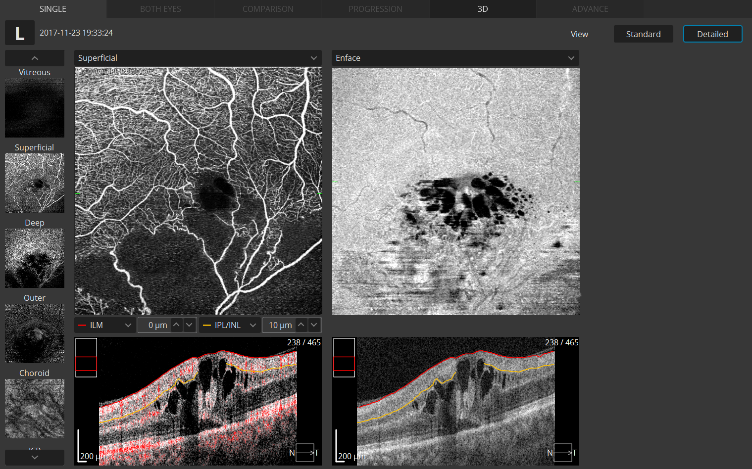 OCT Angiography Detailed Single View