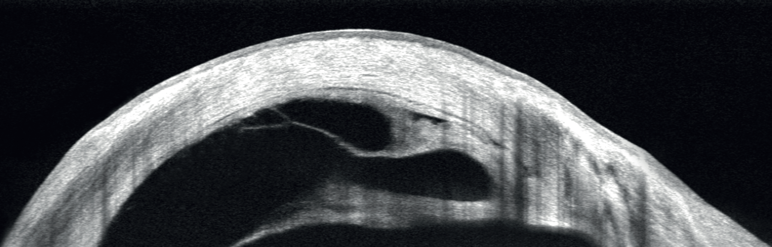 Wide cornea scan, Descemet's membrane detachment (DMD) and iridocorneal adhesions